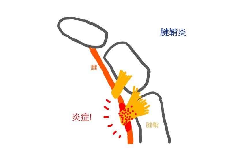 腱鞘炎の図