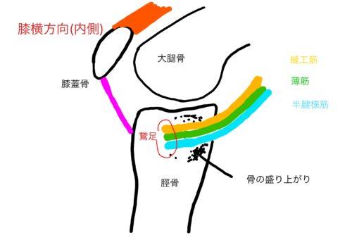 鵞足炎の図