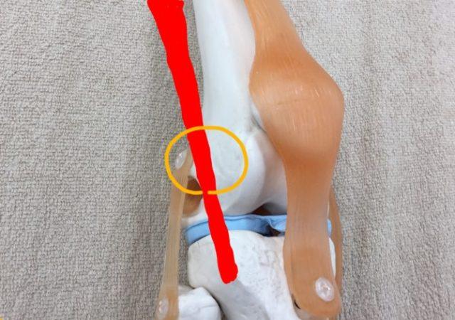 ランナー膝と骨