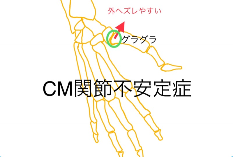 CM不安定症
