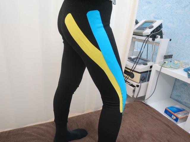 ランナー膝のテープ