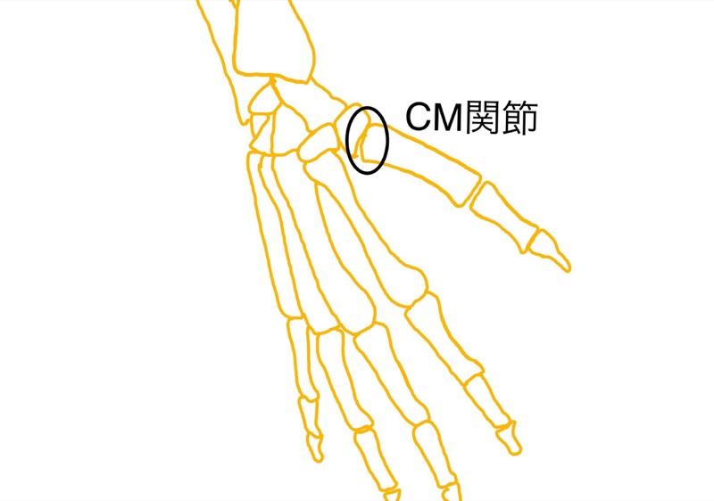 CM関節骨