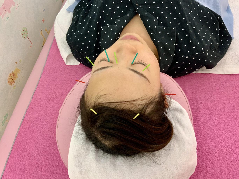 顔への鍼2