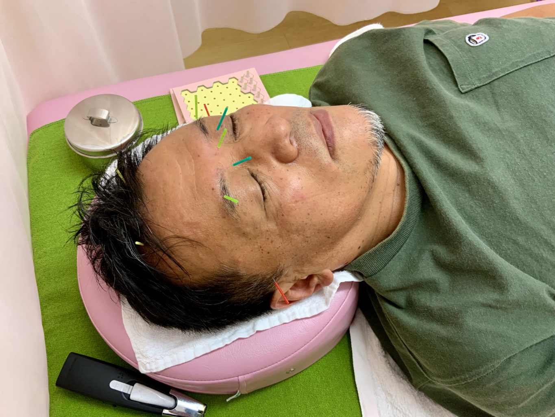 顔への鍼1
